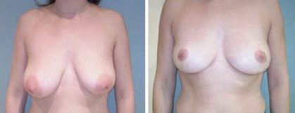 Lifting mammaire avant apres