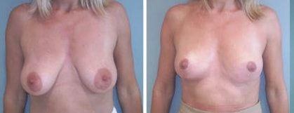 Lifting mammaire photos