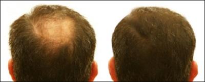 mesotherapie cheveux tunisie avant apres