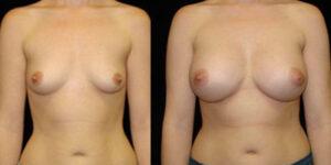 Augmentation mammaire Tunisie avant apres