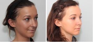 Avant et après chirurgie du nez